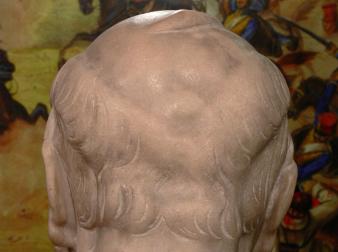 Görgey fejsebe a Semmelweis múzeumban lévő szobron